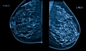 A Mammogram image showing left and right breasts.