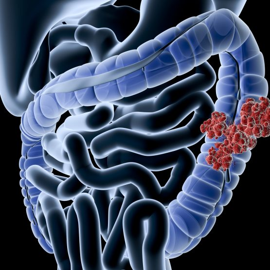 Digital medical illustration: Perspective x-ray view of human colon with tumor. Anatomically correct. Isolated on black.